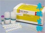 肾病综合征出血热病毒抗体检测试剂盒
