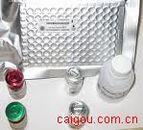 类风湿因子IgM(RF IgM)Elisa kit