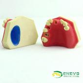 ENOVO頤諾口腔即刻種植上頜骨上頜竇牙列缺失種植體牙醫齒科縫合