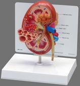 肾脏病变模型