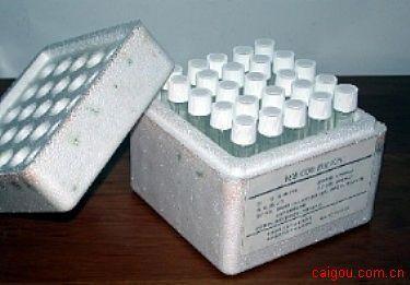 小鼠钙通道阻滞剂Elisa试剂盒,CCB试剂盒