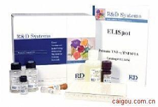 小鼠骨成型蛋白2Elisa试剂盒,BMP-2试剂盒