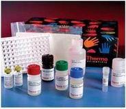 人α1抗胰糜蛋白酶(AACT)ELISA试剂盒