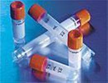叉头蛋白F2抗体