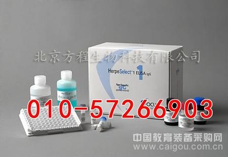 大鼠胰脂肪酸ELISA试剂盒