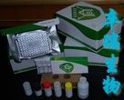 小鼠抗心磷脂抗体IgM(ACA-IgM)Elisa试剂盒