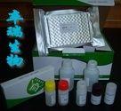 小鼠血红素氧合酶1(HO-1)Elisa试剂盒