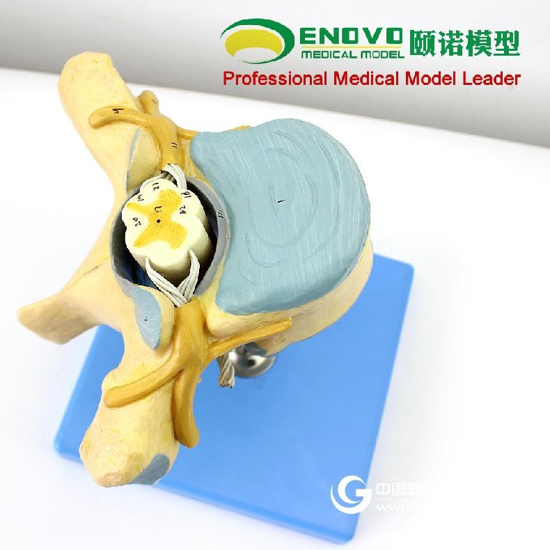 ENOVO頤諾醫學人體胸椎附脊髓和脊神經放大模型神經骨科解剖模型