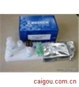 (Tyk-2)人酪氨酸激酶2Elisa试剂盒