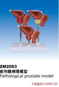 前列腺病理模型